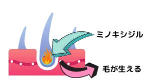 ミノキシジルの説明