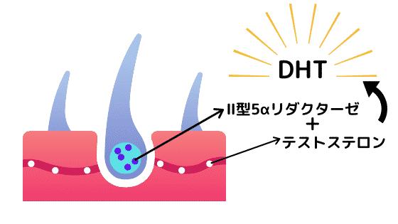 DHTで発生するメカニズム