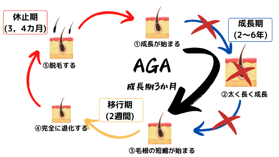 AGAのヘアサイクル