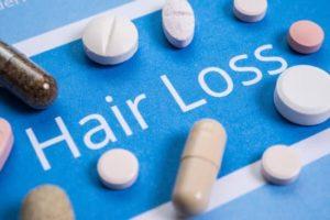 抜け毛の治療薬